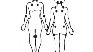 Fibromyalgia Tender Points: Locations and Tips for Pain Management