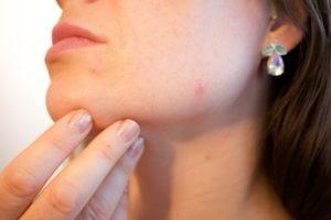 15 Natural Ways to Get Rid of Pimples
