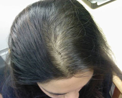 hair loss telogen