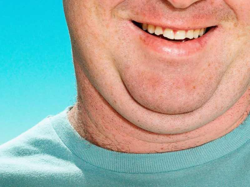 9 Easy and Effective Tips To Lose Neck Fat Fast