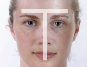 7 Ways to Treat Your Skin Discoloration 1 skin texture 4 300x233