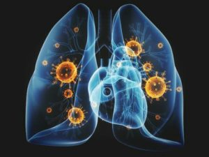 Walking Pneumonia: Meaning, Symptoms, Causes and Treatment